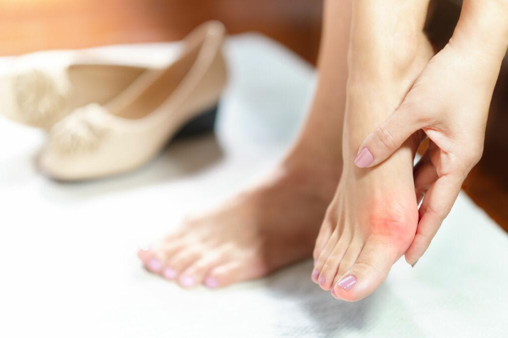 Hallux Valgus – Kosmetisches Defizit oder gesundheitliche Bedrohung?